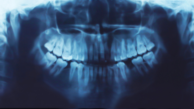 Friendly Dental of Worcester is taking new dental paitents and appointments in Worcester MA.
