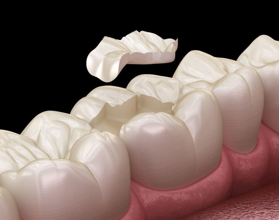 dental restoration worcester